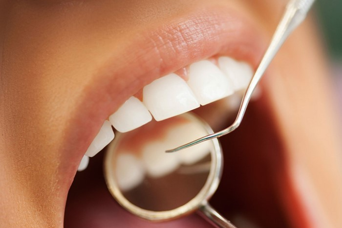 Cavity check and treatment